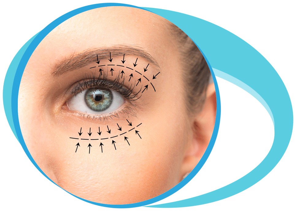 Blepharoplasty in Iran