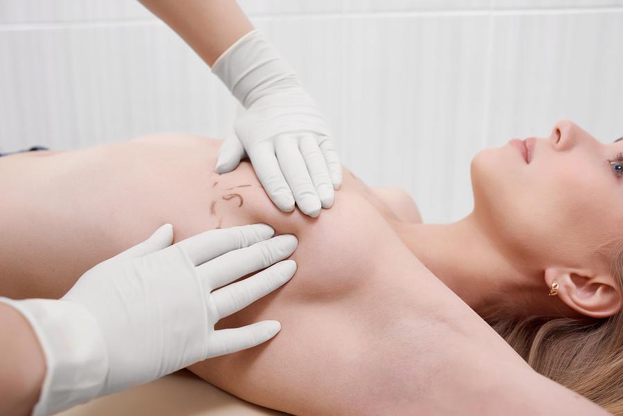 Breast Augmentation Surgery In Iran
