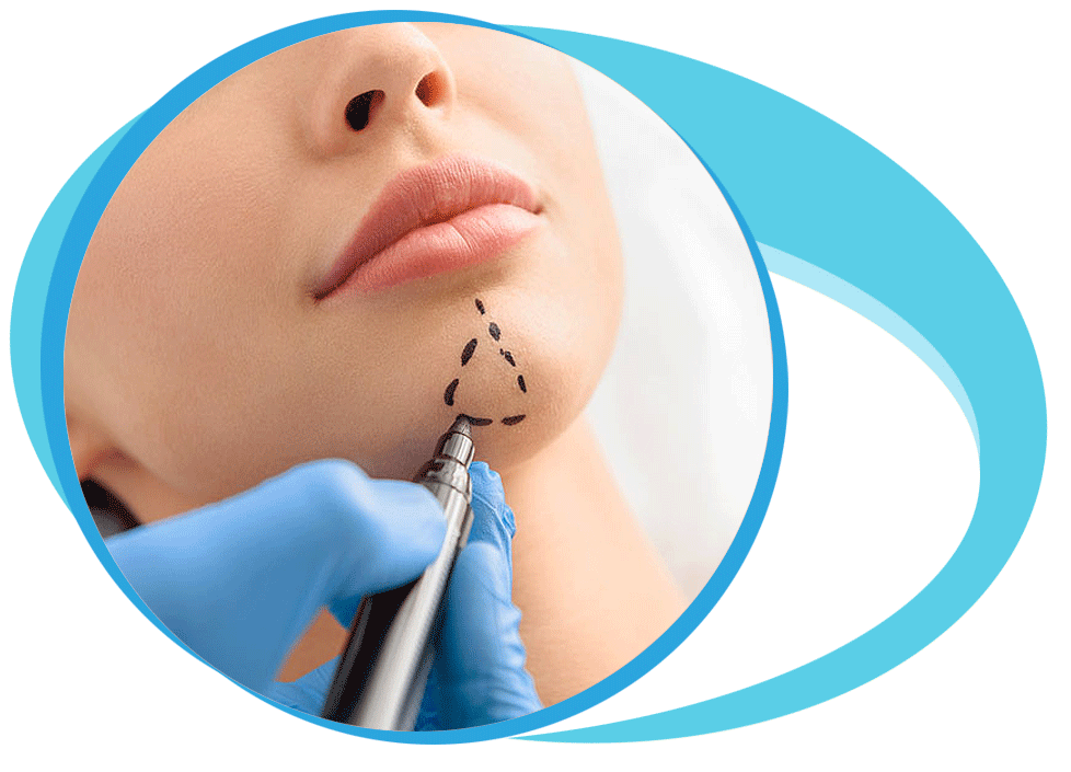 Chin Implant Surgery in Iran