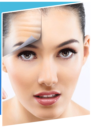 Cosmetic Forehead Lift Surgery In Iran 1