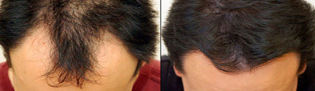 Hair Transplant Surgery In Iran