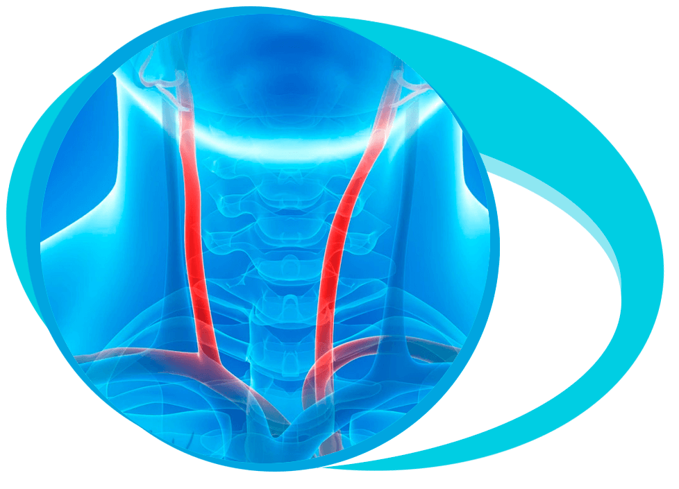 Carotid Artery Disease in Iran