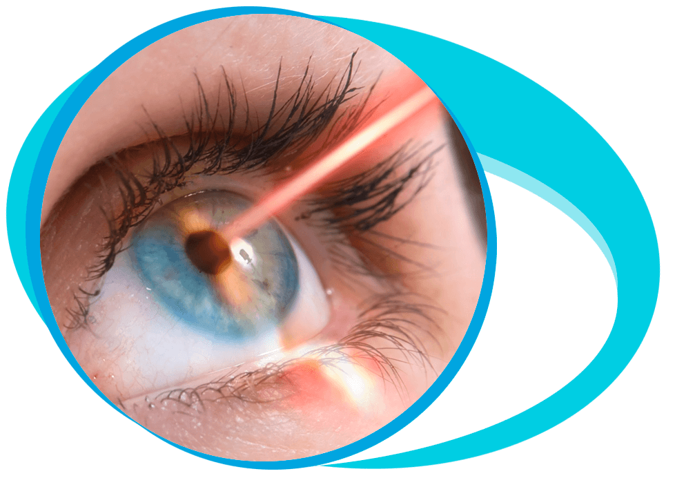 Laser Eye Surgery in Iran
