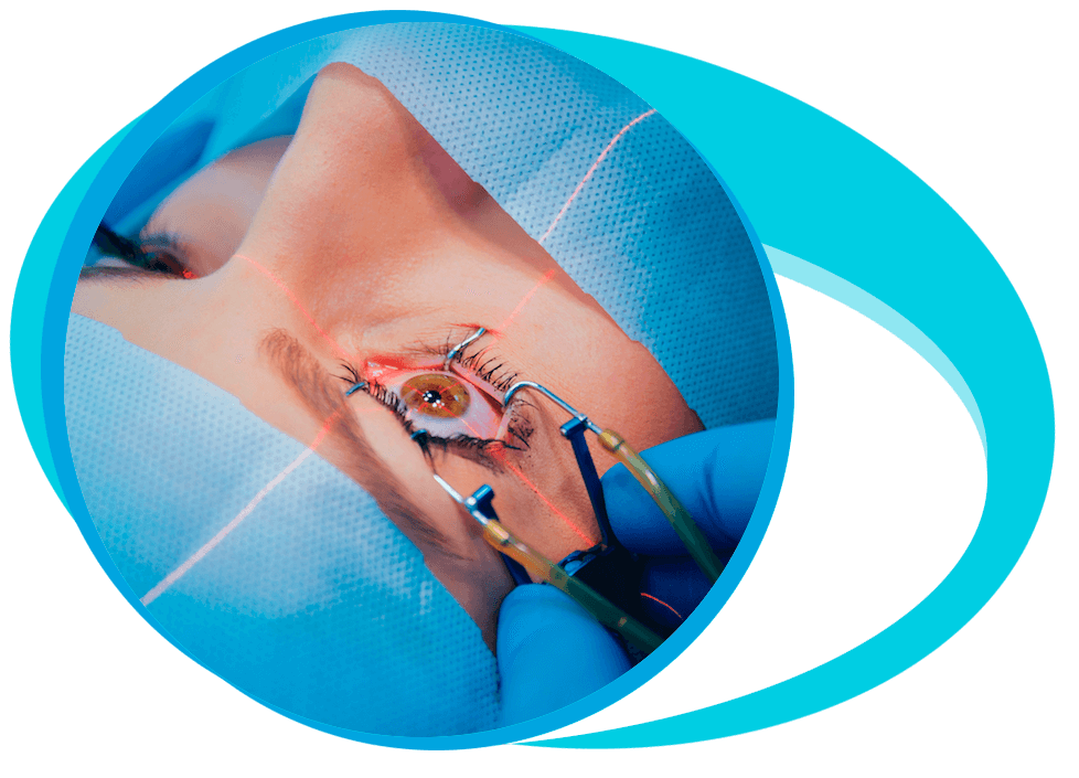 Cataract Surgery in Iran