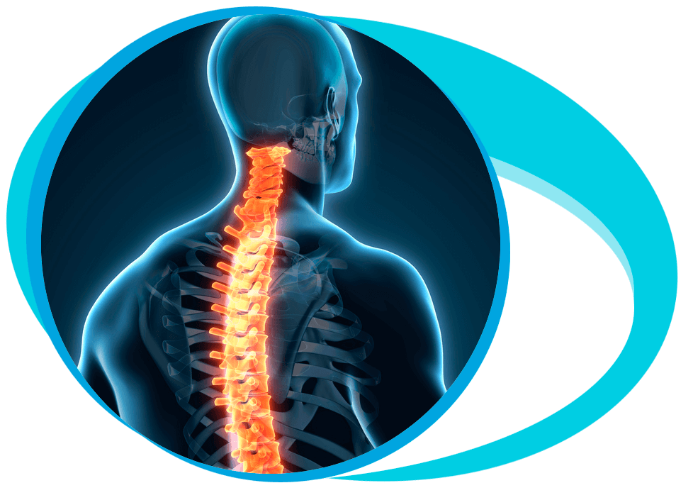 Spinal Tumor Surgery in Iran