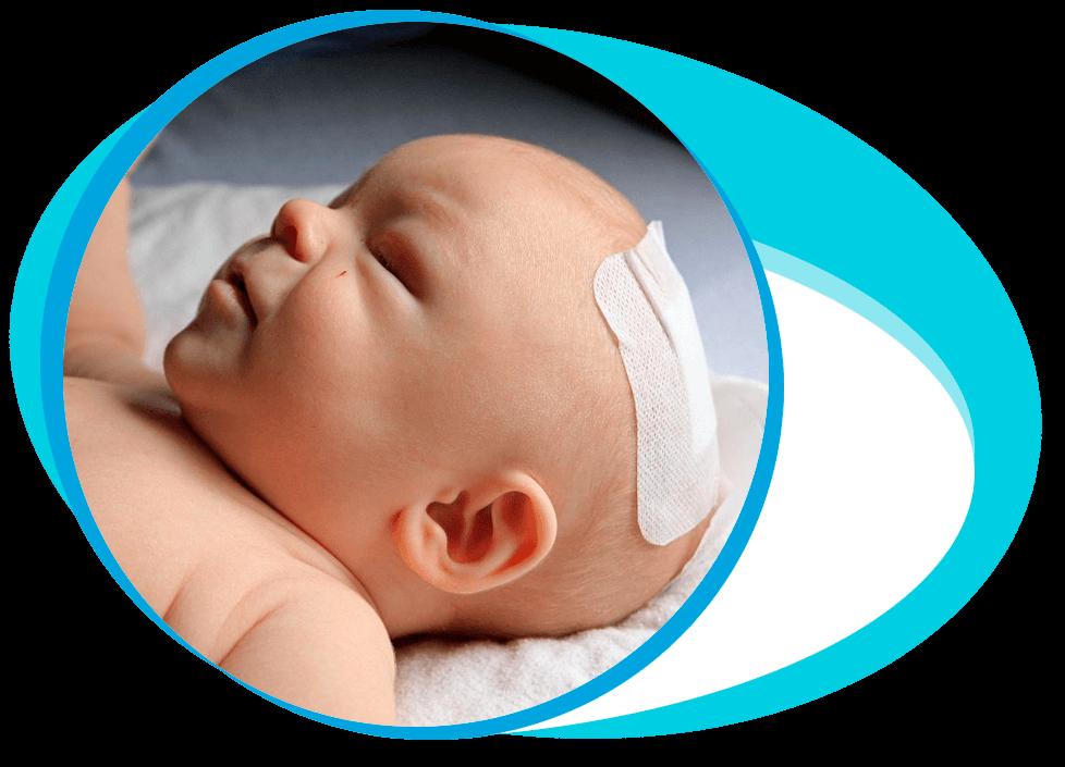 Craniosynostosis Surgery in Iran