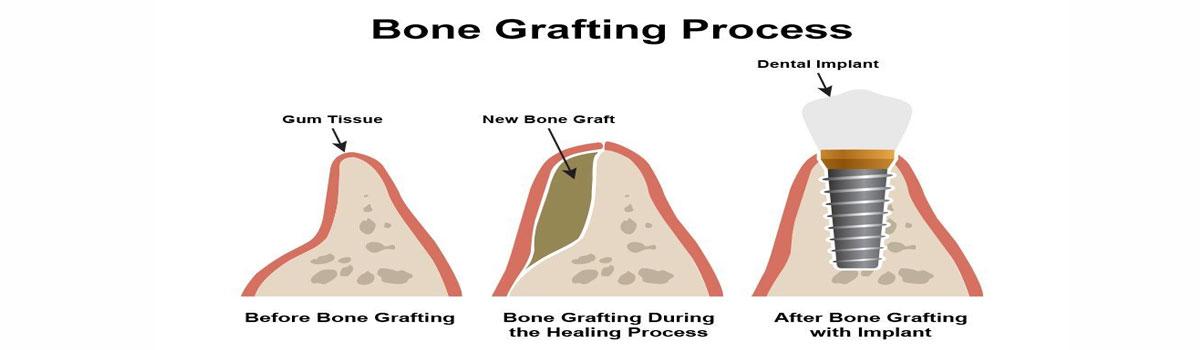 Bone Grafting In Iran