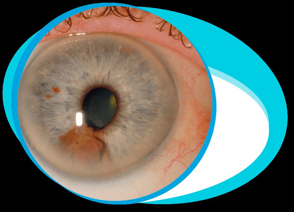 Eye Cancer Treatment in Iran