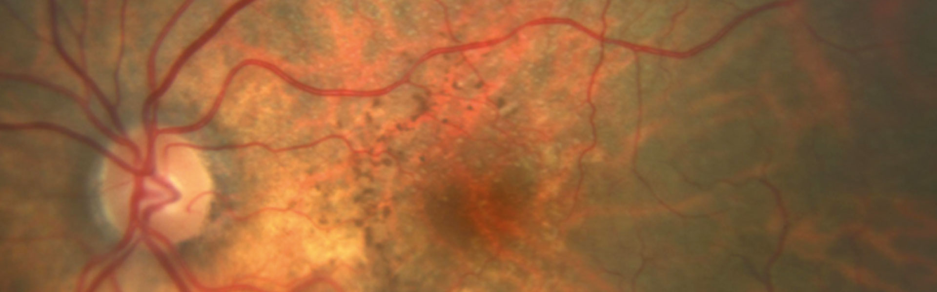 Age-Related Macular Degeneration In Iran
