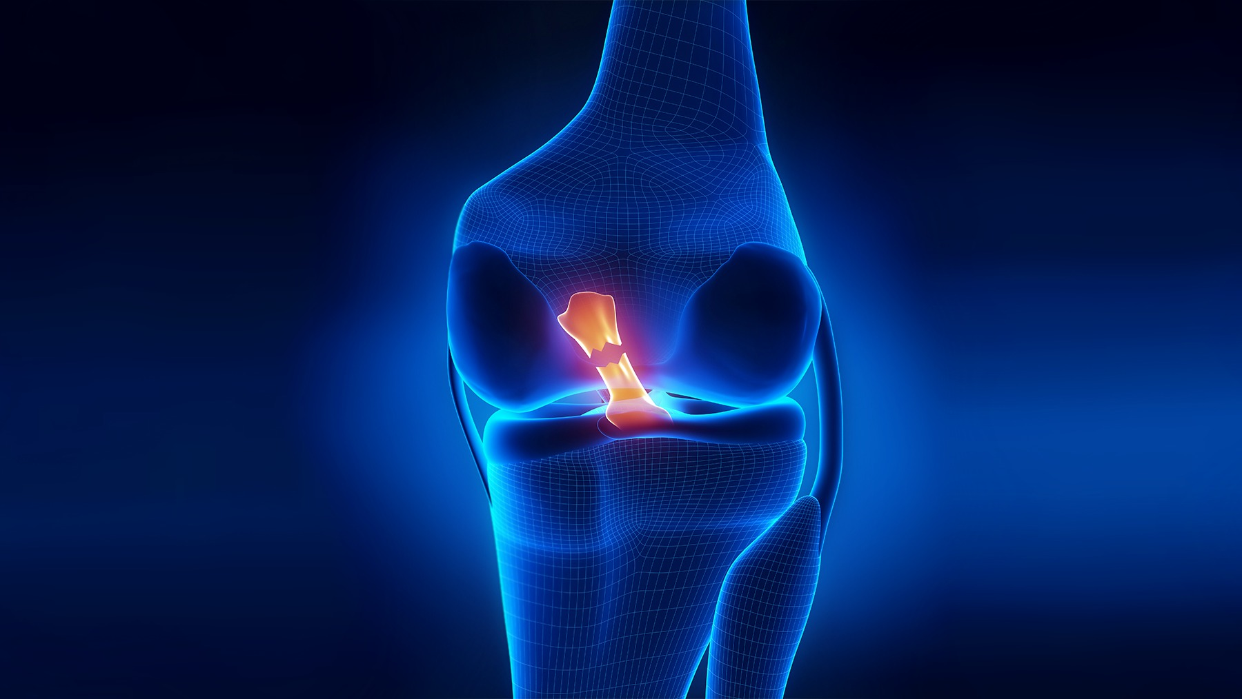 Anterior Cruciate Ligament (Acl) Reconstruction In Iran