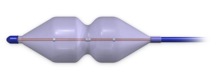 Balloon Aortic Valvuloplasty In Iran
