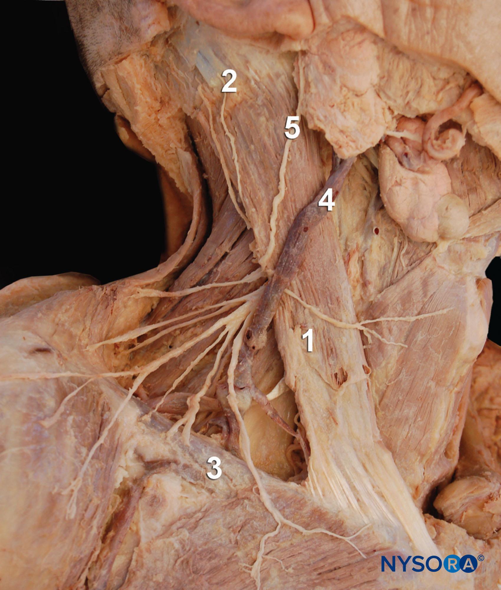 Block Nech Dissection