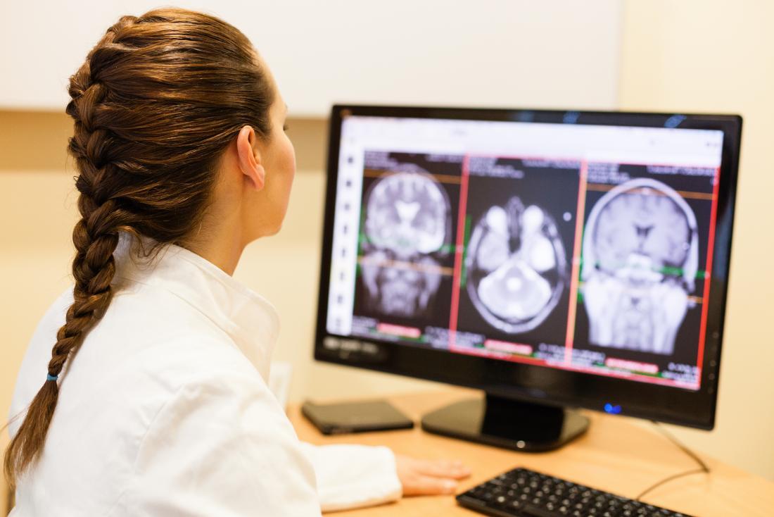 Brain Aneurysm Treatment In Iran