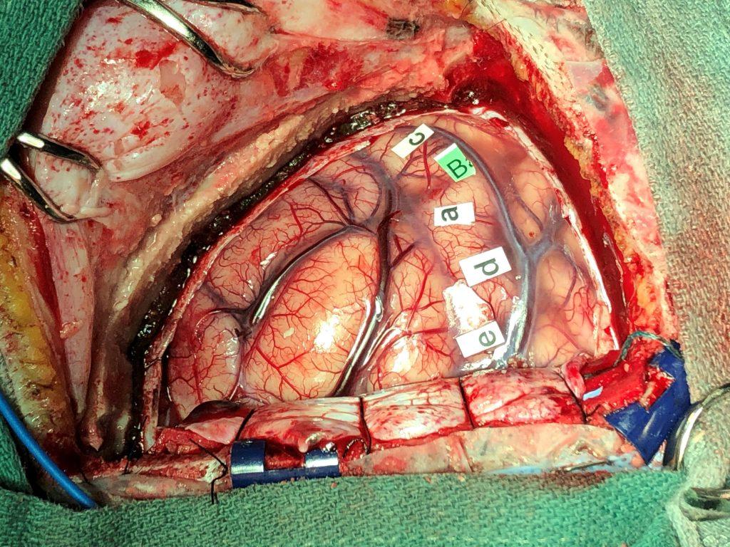 Brain Surgery In Iran