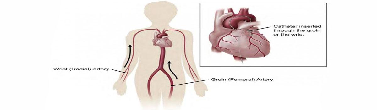 Coronary Angiography In Iran
