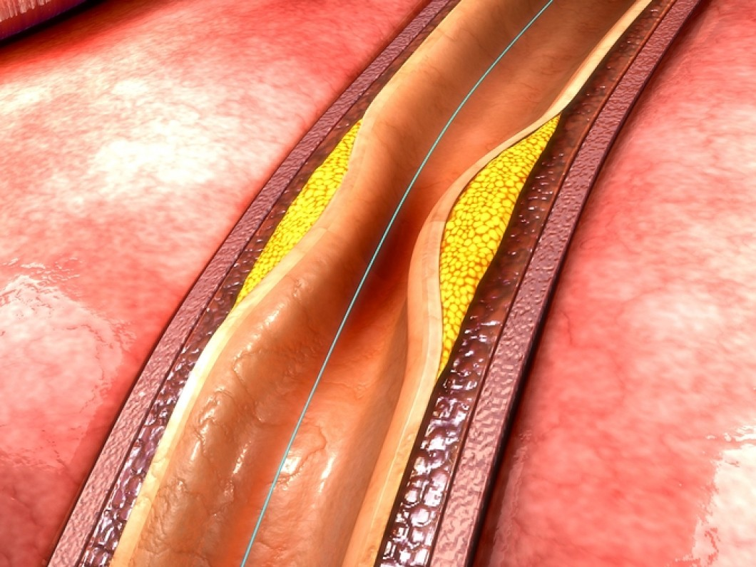 Coronary Angioplasty In Iran