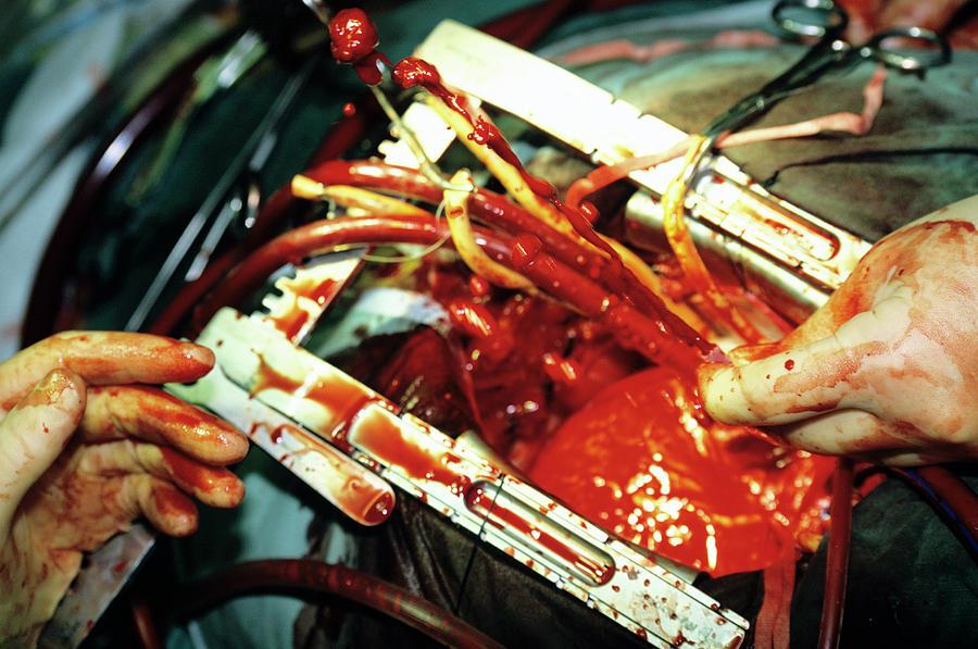 Coronary Artery Bypass Surgery In Iran Coronary Artery Bypass Surgery In Iran 8