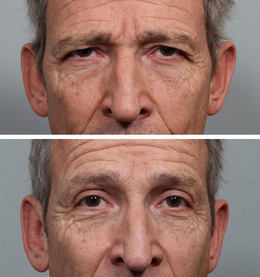 Cosmetic Eye Surgery In Iran