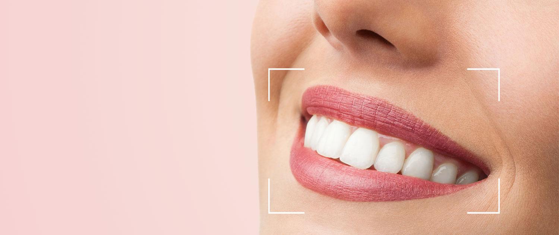 Cosmetic Smile Designing In Iran