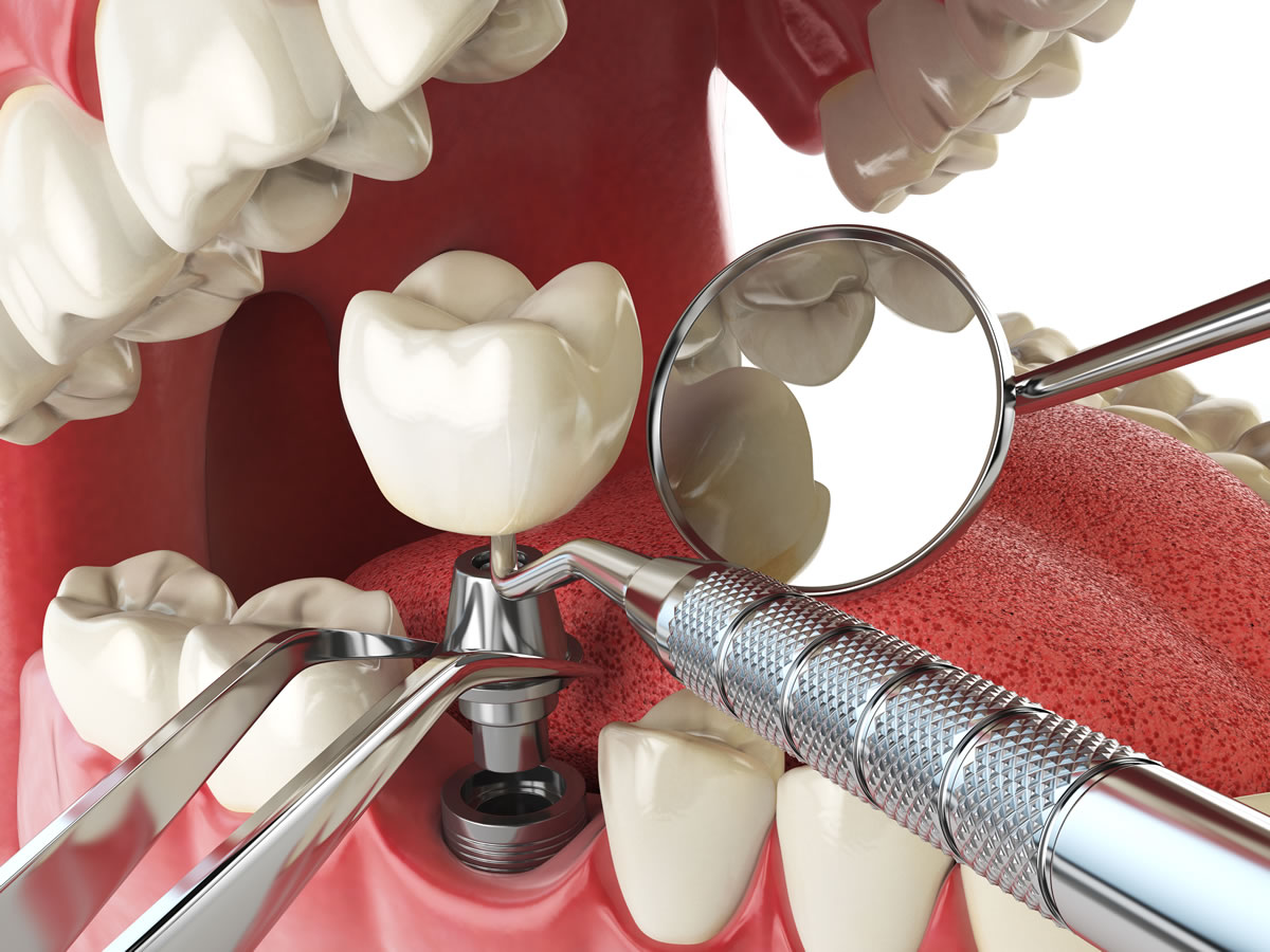 Dental Implant In Iran