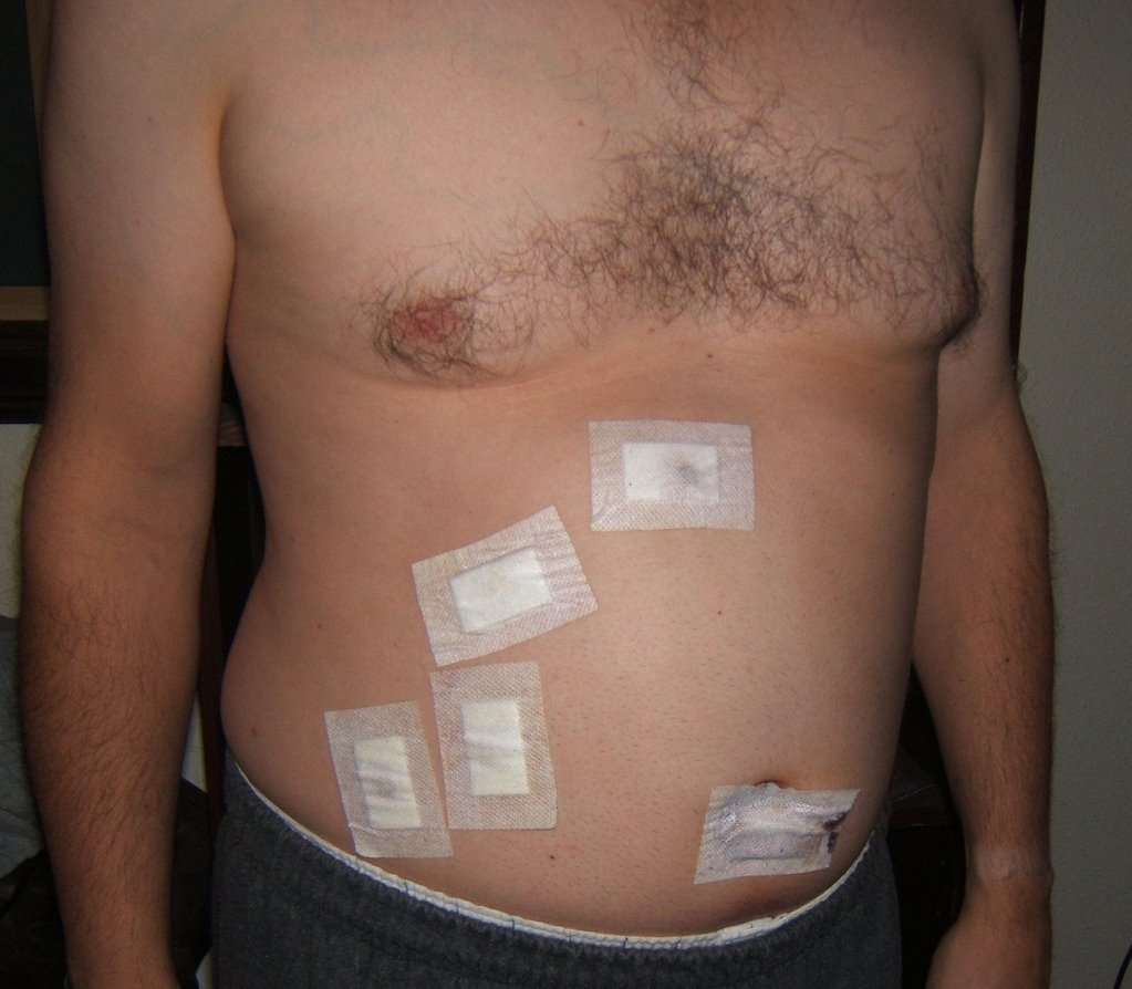 Gallbladder Surgery In Iran