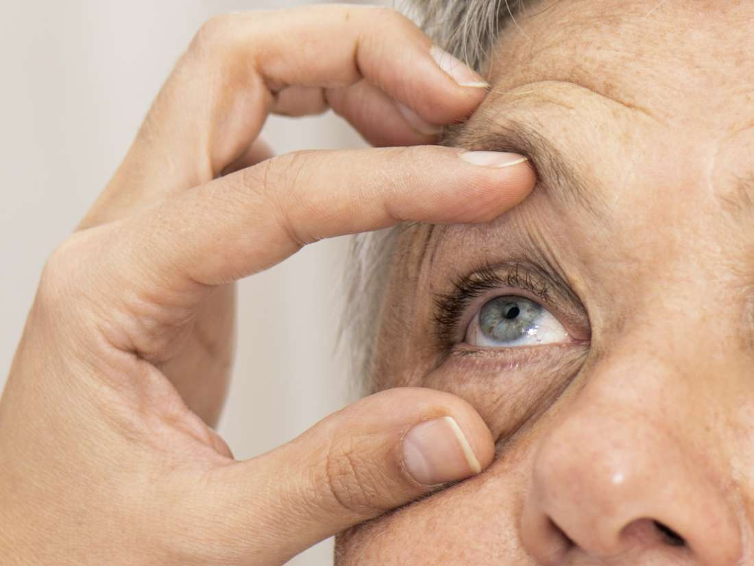 Glaucoma Treatment In Iran