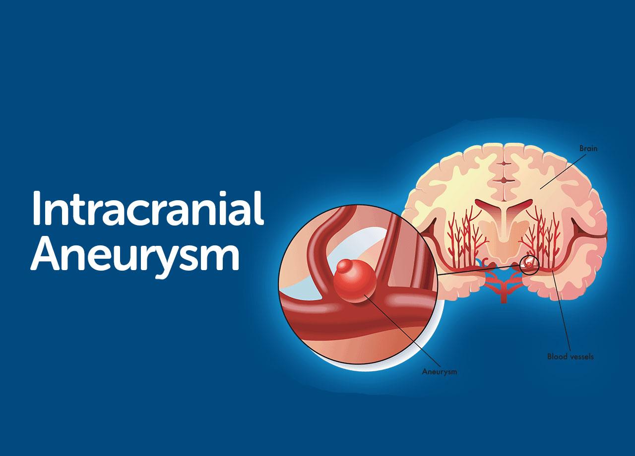 Intracranial Aneurysm Surgery In Iran
