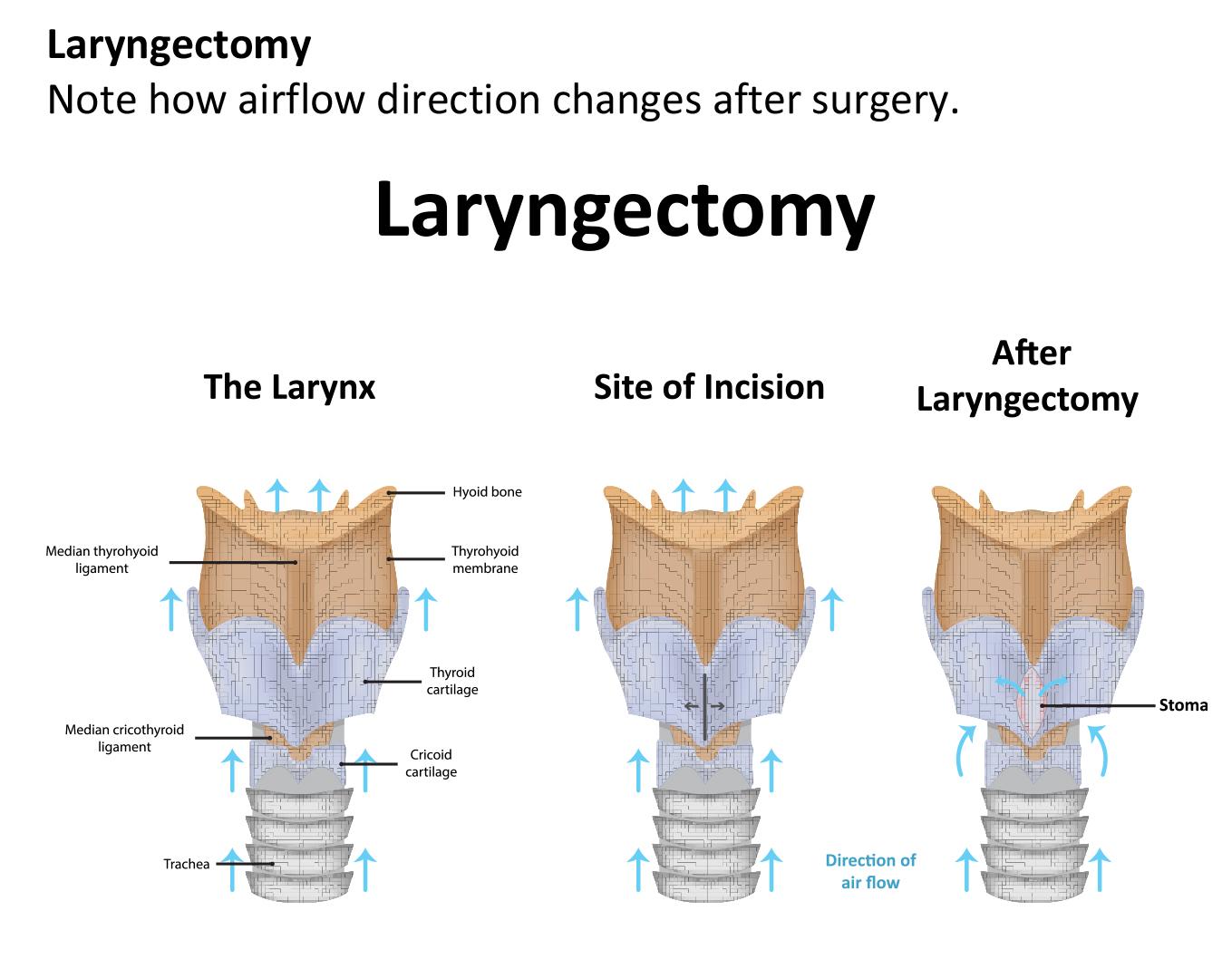 Laryngectomy Surgery In Iran