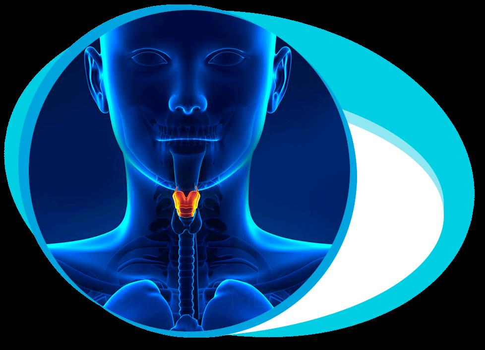 Laryngectomy Surgery