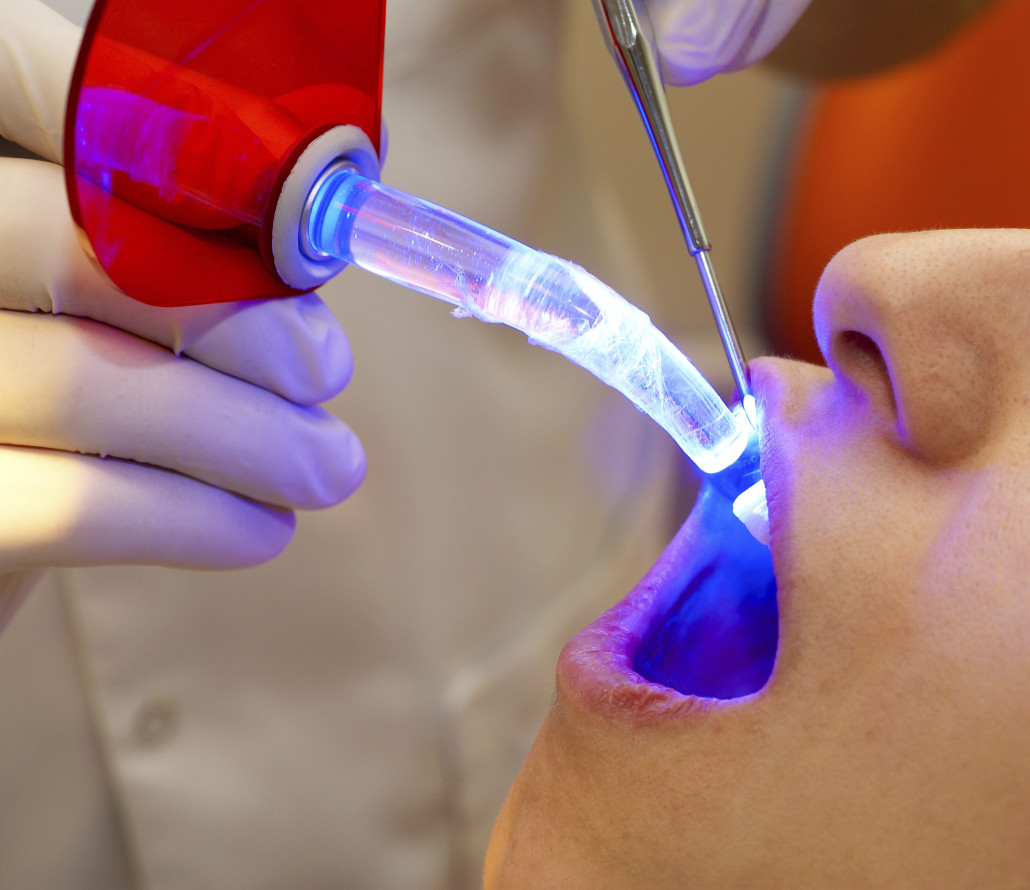Laser Dental Treatments In Iran