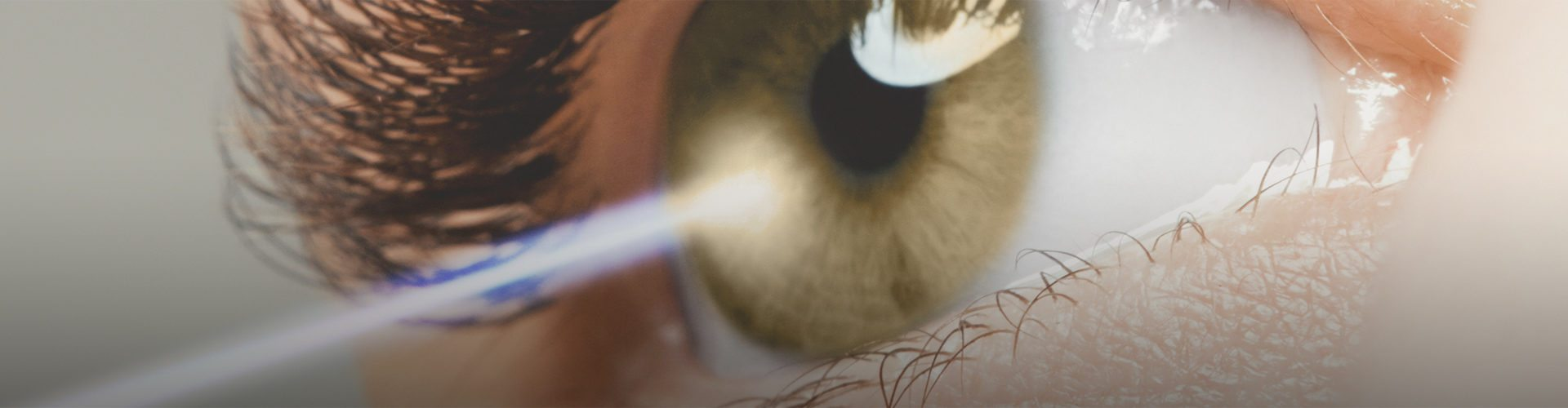 Laser Eye Surgery In Iran Laser Eye Surgery In Iran 6