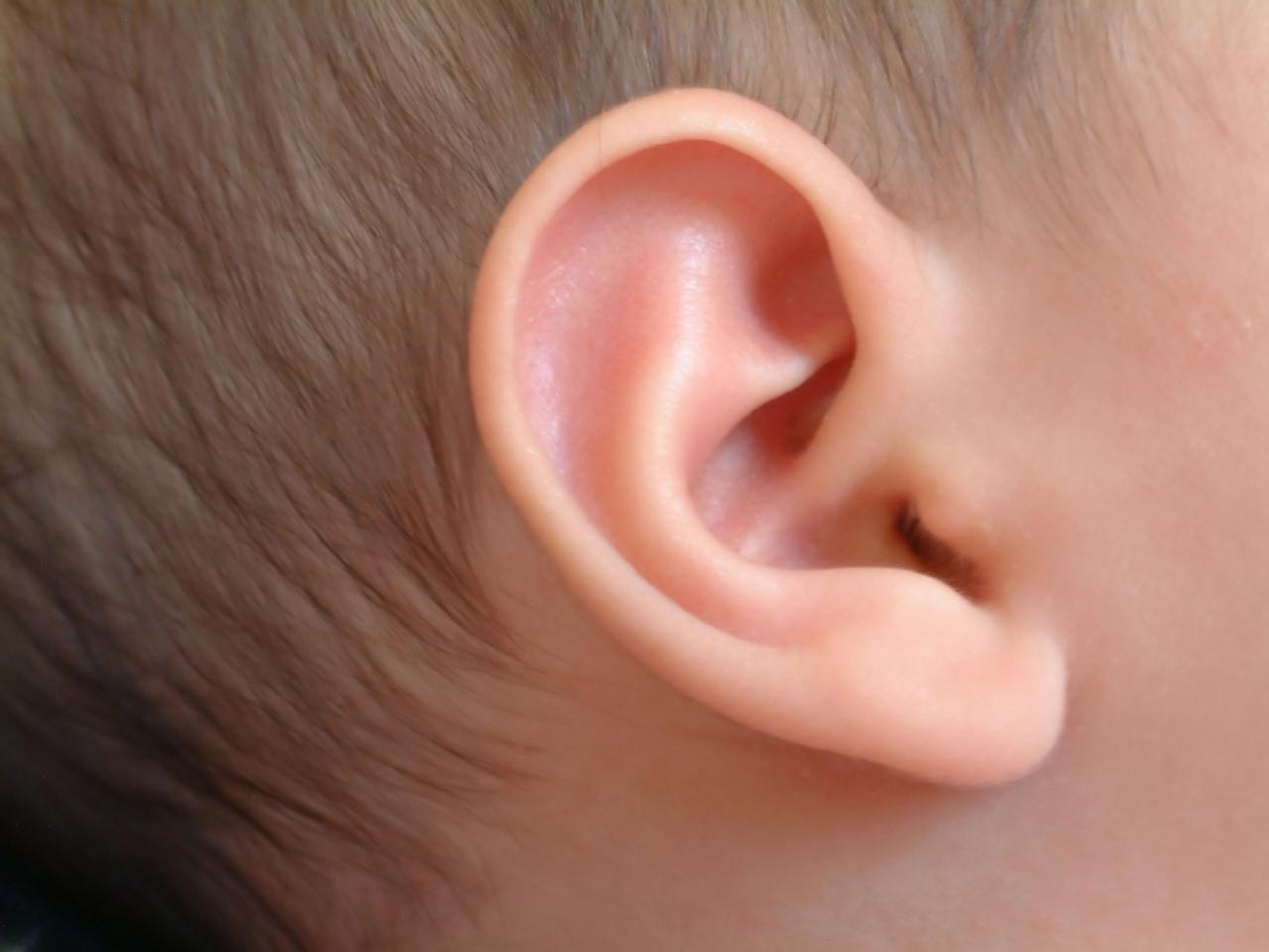 Myringotomy (Ear Surgery) In Iran