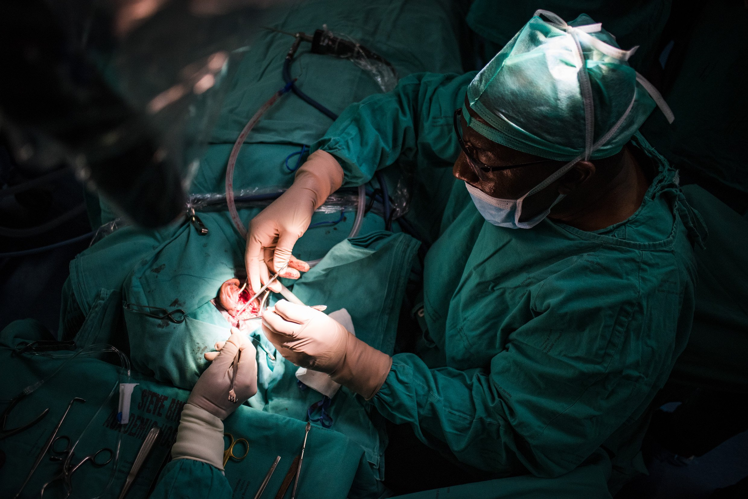 Ossiculoplasty (Middle Ear) Surgery In Iran