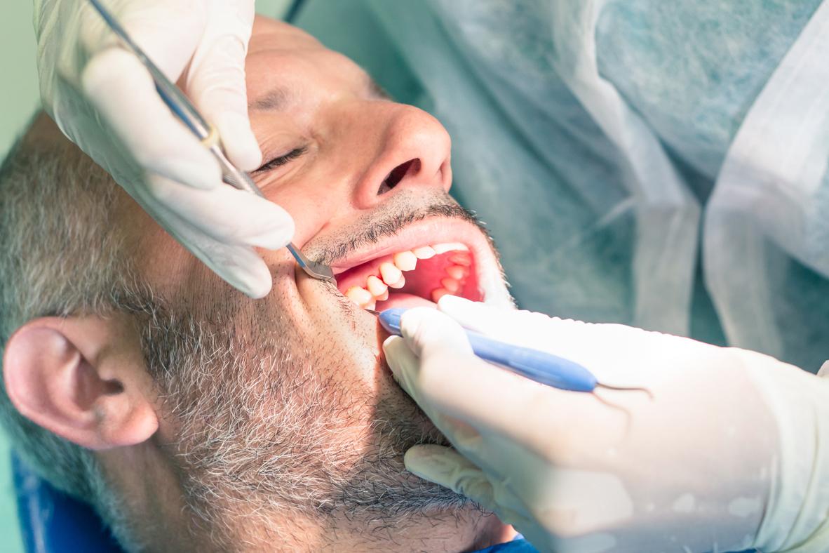 Periodontal Flap Surgery In Iran