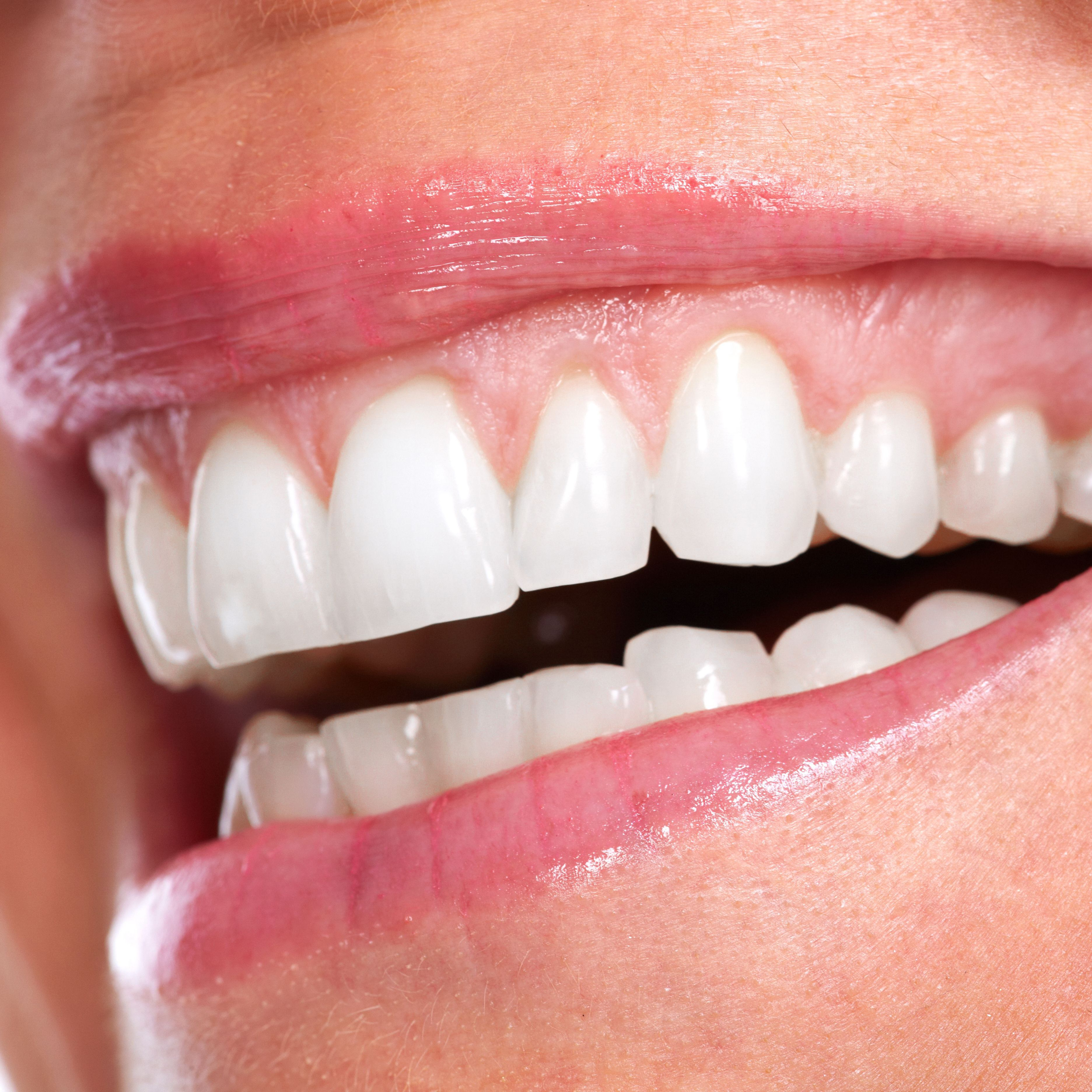 Reconstructive Dentistry In Iran