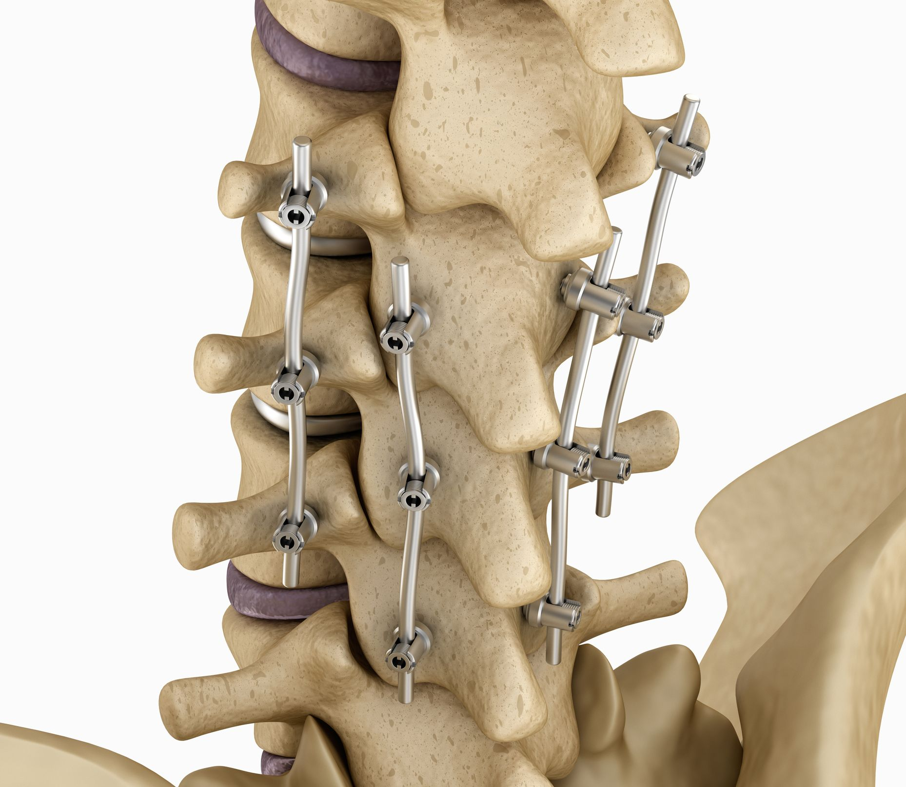 Spinal Fusion In Iran