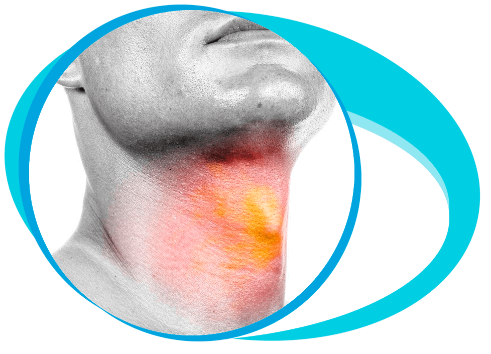 Thyroplasty in Iran