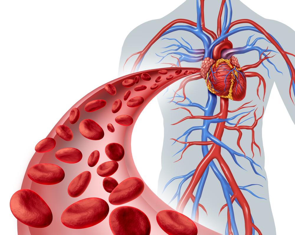 Vascular Surgery In Iran