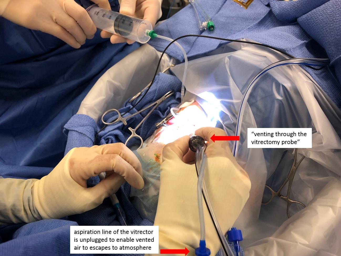 Vitrectomy Surgery In Iran
