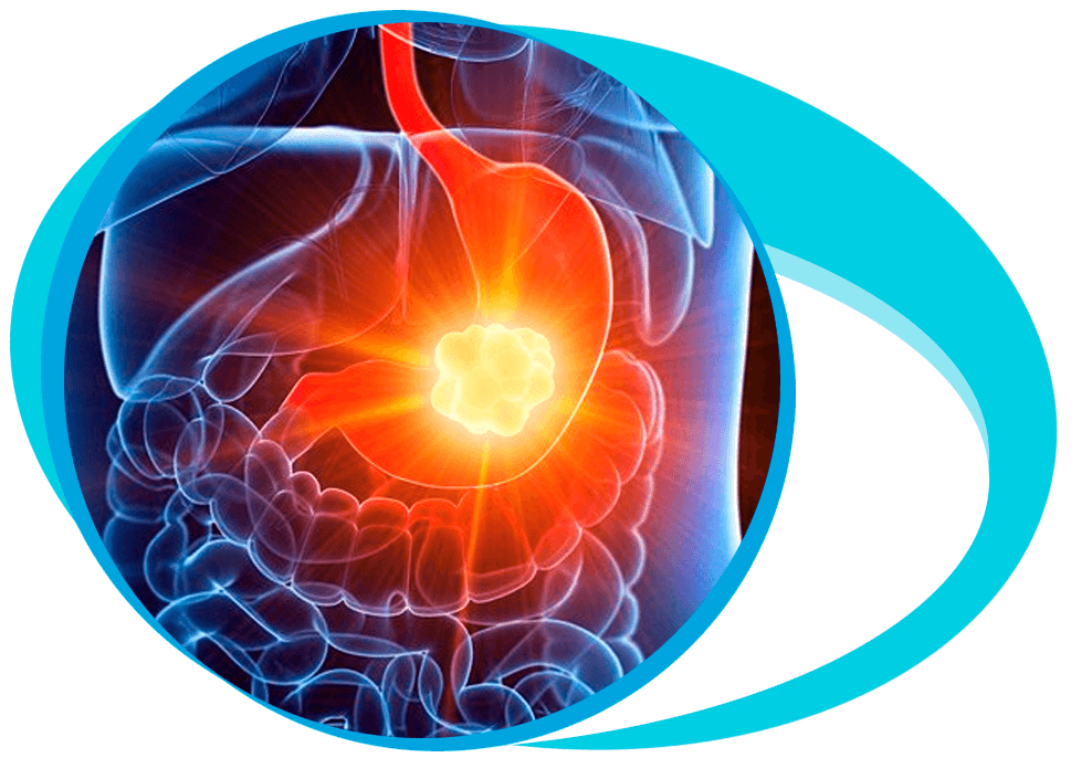 Gastric Cancer Treatment in Iran