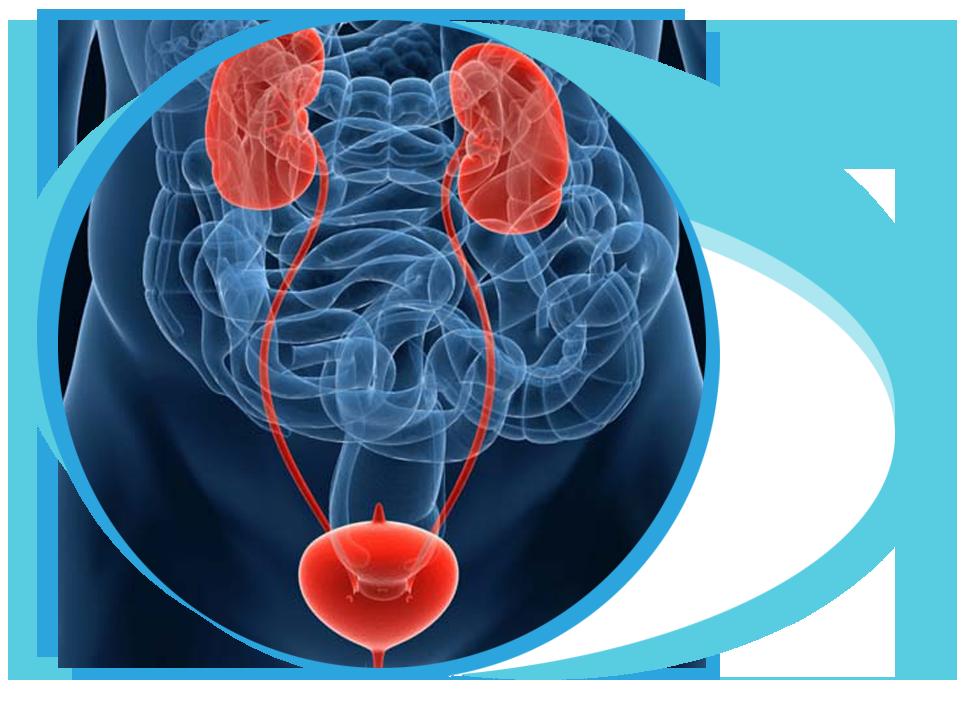 Optical Internal Urethrotomy