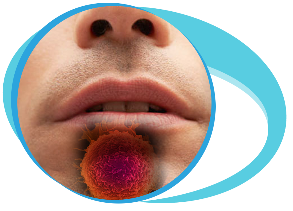 Oral Cancer Treatment in Iran