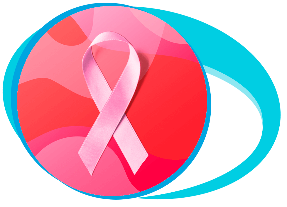 Breast Cancer Treatment in Iran