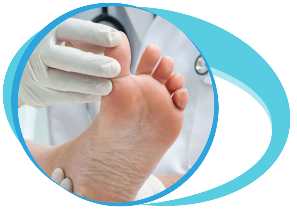 Foot and Ankle surgery in Iran