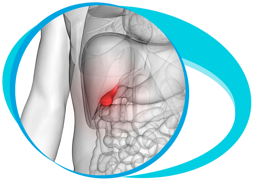 Gallbladder Cancer Treatment in Iran