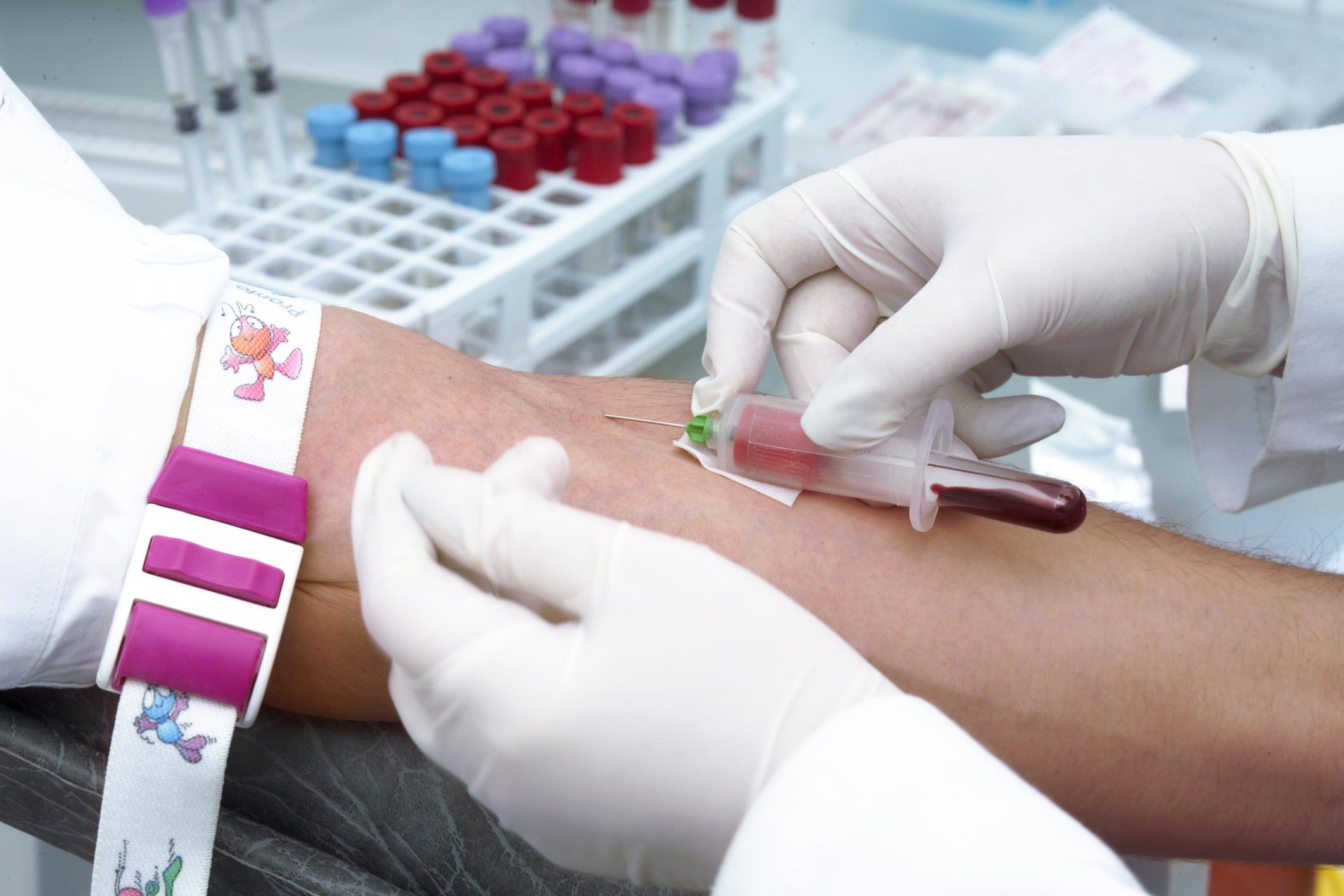 Blood Cancer Treatment In Iran