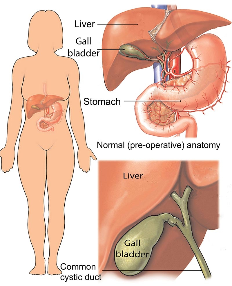 Cholecystectomy (Gall Bladder Removal) In Iran