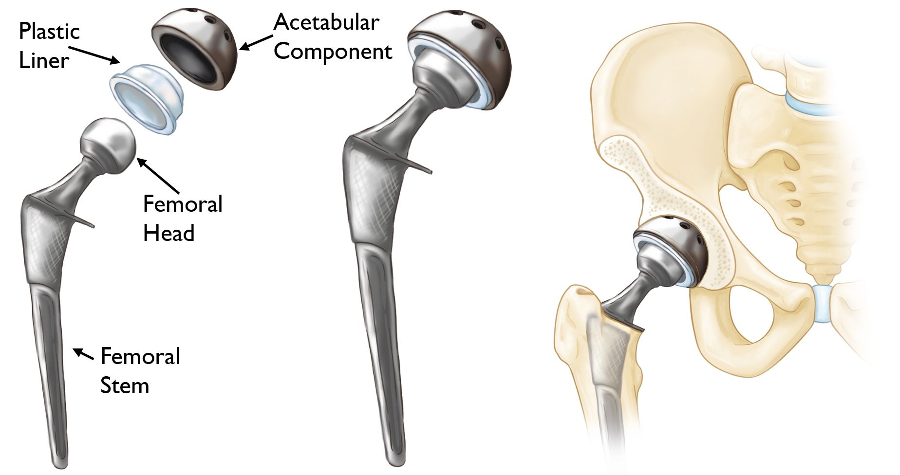 Hip Replacement Surgery In Iran