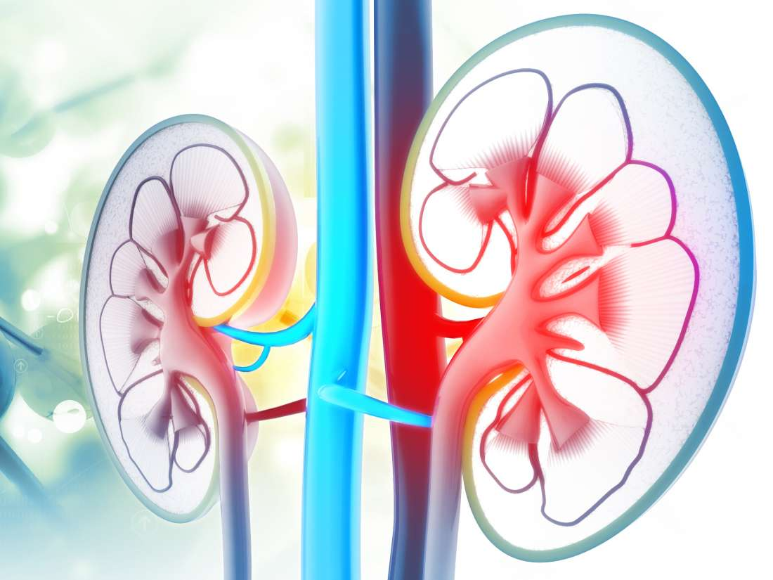 Nephrotic Syndrome Treatment In Iran