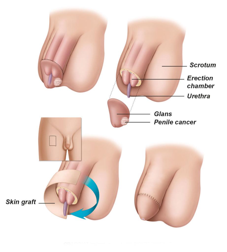 Partial Penectomy Surgery In Iran